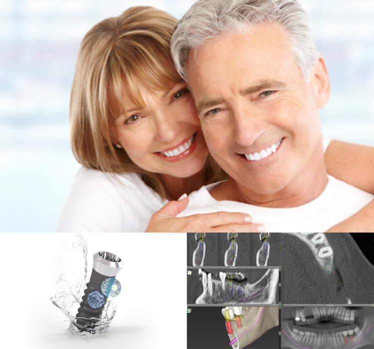 入れ歯治療,インプラント治療、高性能CT